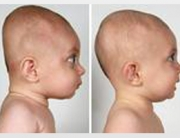 8-Plagiocephaly-3-small
