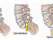 Spondylolisthesis