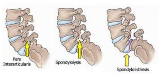 Stable vs unstable spondylolisthesis