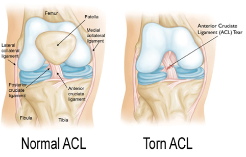 ACL Injuries & Preventative Exercises