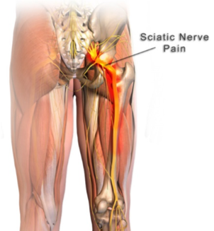 Is your 'sciatica' actually nerve pain?