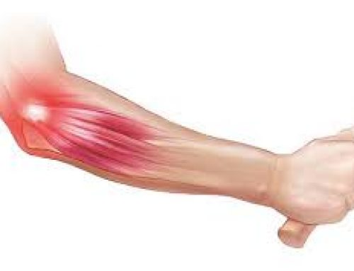 Golfers & Tennis Elbow