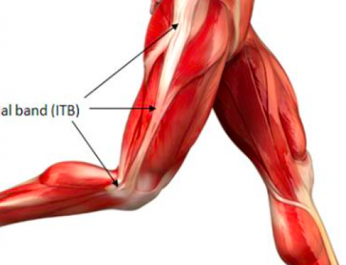 Iliotibial Band Syndrome (ITBS) – Causes, Symptoms & Treatment
